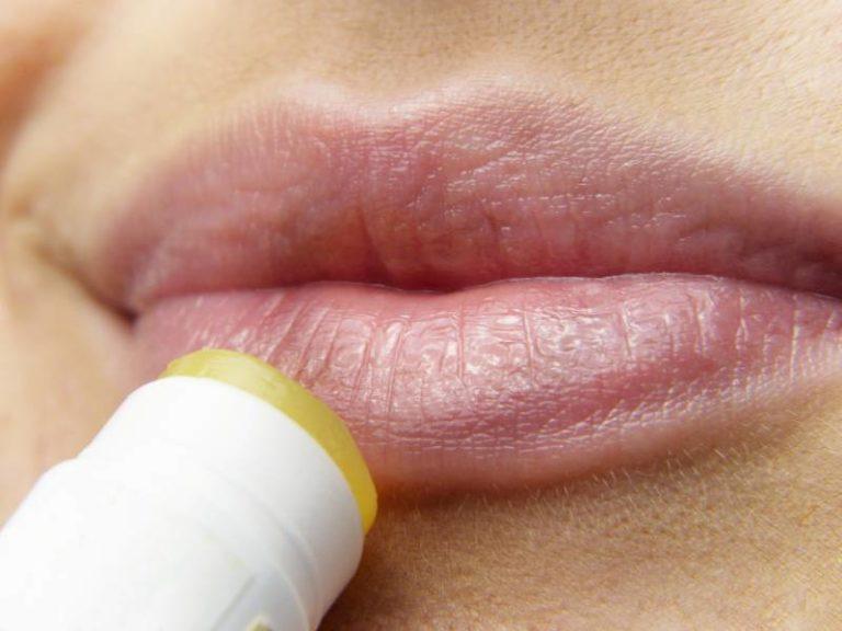 Come eliminare l'herpes in poche ore
