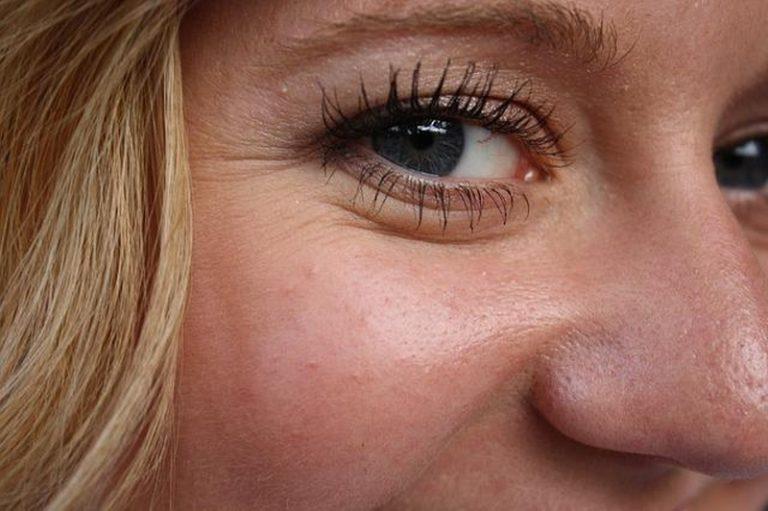 Come prevenire le rughe: consigli per una pelle sempre giovane
